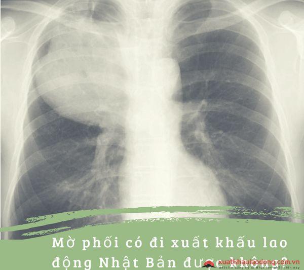 Mờ phổi có đi xuất khẩu lao động Nhật Bản được không