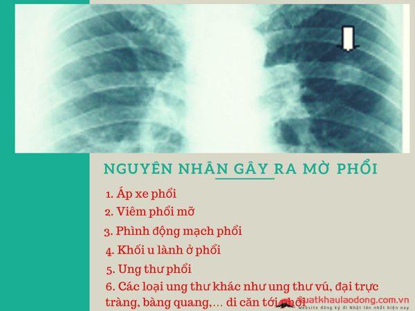 Mờ phổi có đi XKLĐ Nhật Bản được không